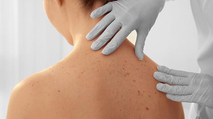 Dr. Leonardo Braga | Tratamento de Tumores e Lesões de Pele