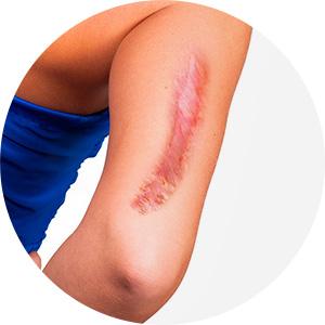 Dr. Leonardo Braga | Ressecção De Cicatrizes